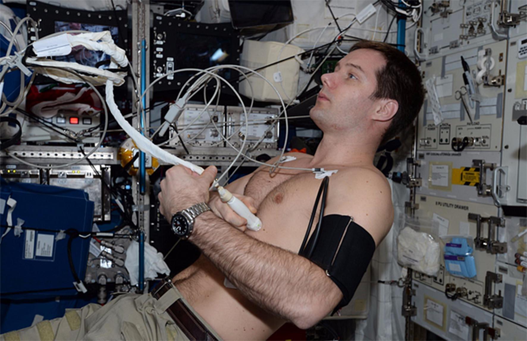 Pesuet DR ISS